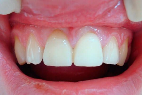 как быстро и недорого восстановить зубной ряд