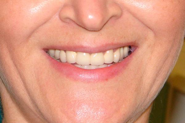 искусственные зубы не заметны