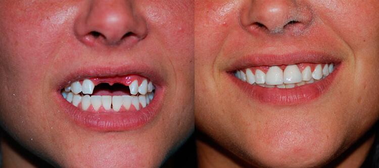 зубной протез бабочка служит для моментального и безболезненного восстановления удаленных коронок