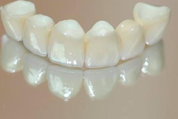 безметалловая керамика на 6 зубов