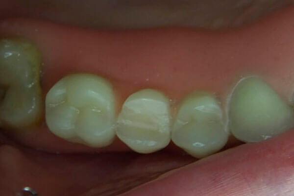 как выглядит приспособление на челюсти пациента