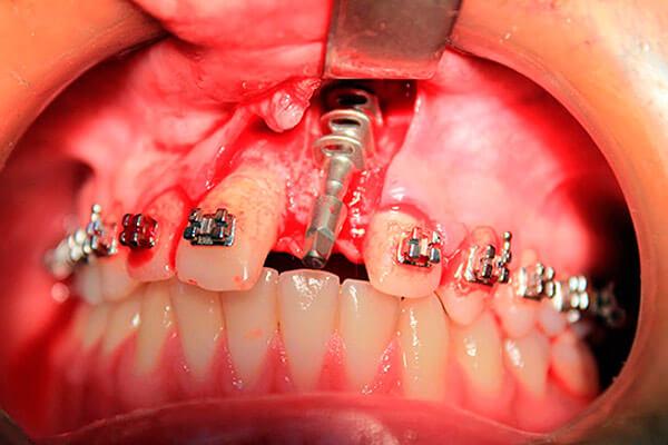базальный имплант
