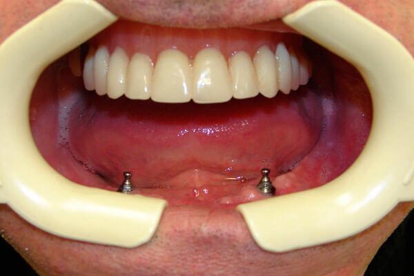 съемное протезирование верхней челюсти