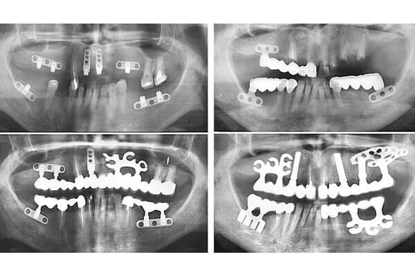 снимок после каждого этапа операции