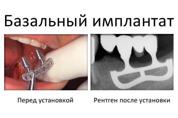 до и после установки