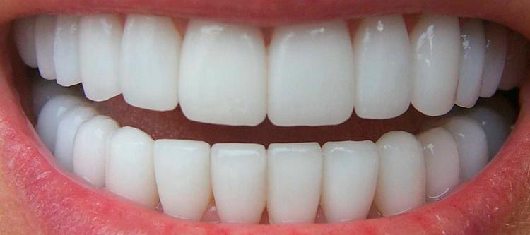 чем металлокерамические коронки на передние зубы отличаются от протезирования жевательных