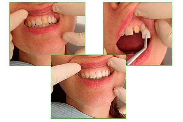 закрытие дефекта цвета зуба виниром