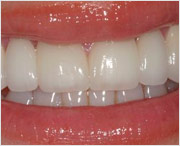 Передние фарфоровые зубы на верхнюю челюсть