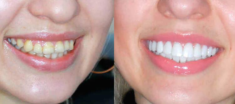 композитный винир: шокирующие фото до и после