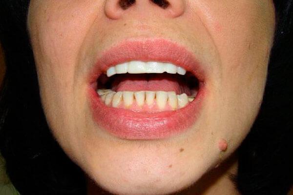 как выглядят верхние зубы из металлокерамики