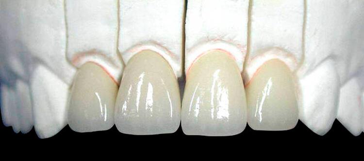 чем отличается керамическая коронка на передний и жевательный зуб