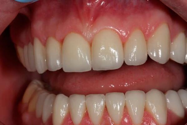 все зубы выглядят как настоящие