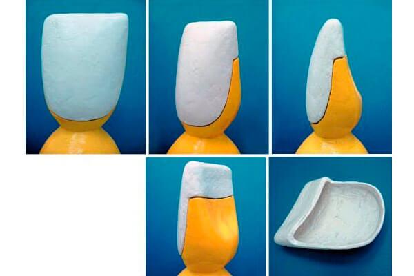 можно ли ставить виниры если нет зуба