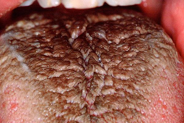 болезнь черного волосатого языка