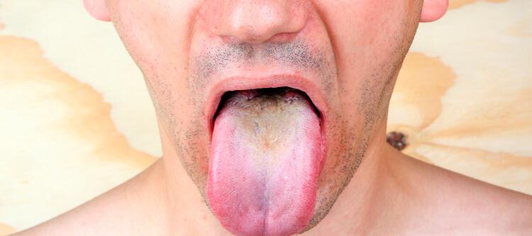 что может произойти если не вылечить черный волосатый язык своевременно