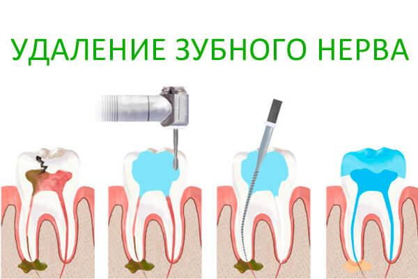 прополис - лекарство убивающее нерв