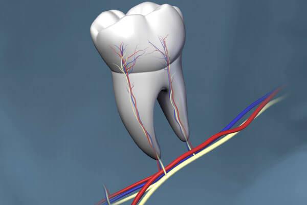 убить зубной нерв чесноком