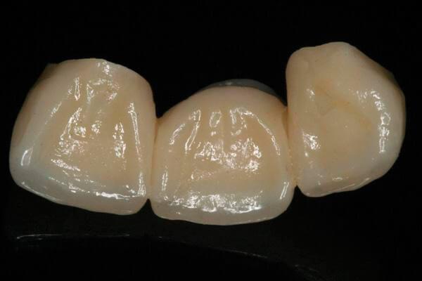 искусственный передний зуб