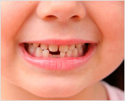когда начинают расти постоянные зубы