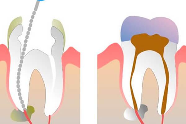 чем лучше убить нерв: йодом или марганцовкой