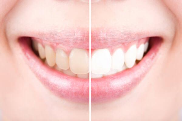 как сделать сверкающую улыбку