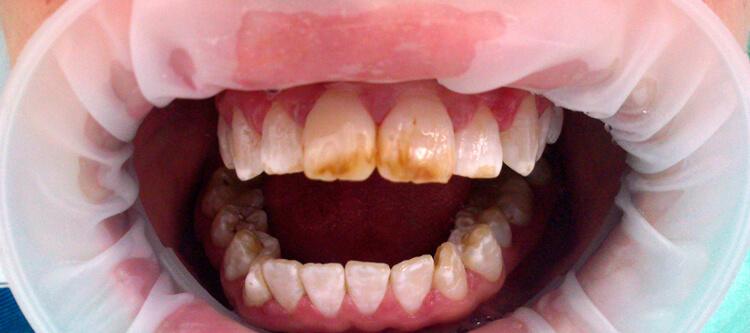 посмотреть флюороз зубов на фото