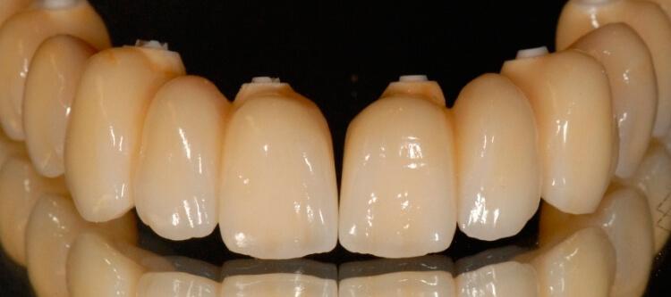 прежде чем ставить циркониевые коронки на передние зубы, нужно изучить отзывы