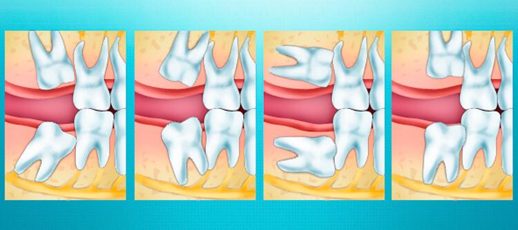 сложное удаление ретинированного зуба мудрости: сколько времени рана болит после операции