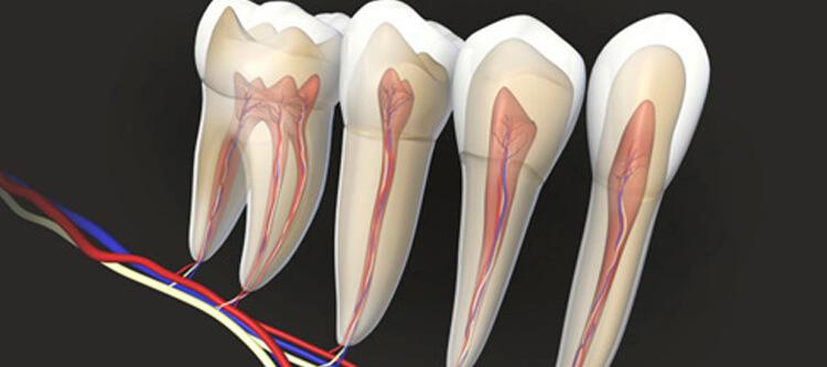 как убить зубной нерв быстро и безболезненно