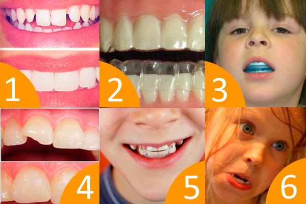 выпрямление зубов у подростков в домашних условиях