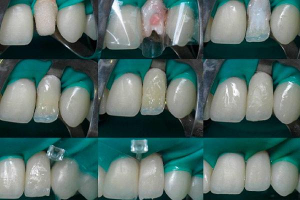 восстановить передние зубы без пластинок