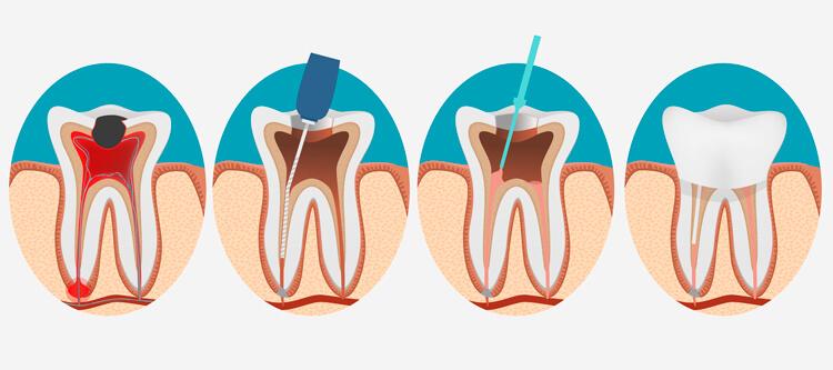 что такое хронический и острый пульпит зуба