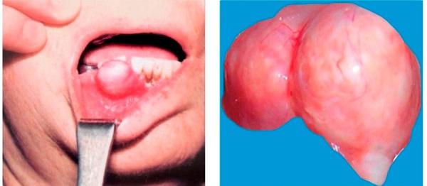 новообразование до и после операции