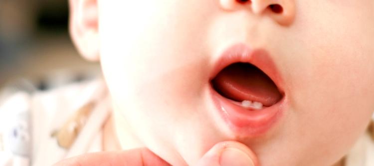 опасность запущенного герпетического стоматита у детей
