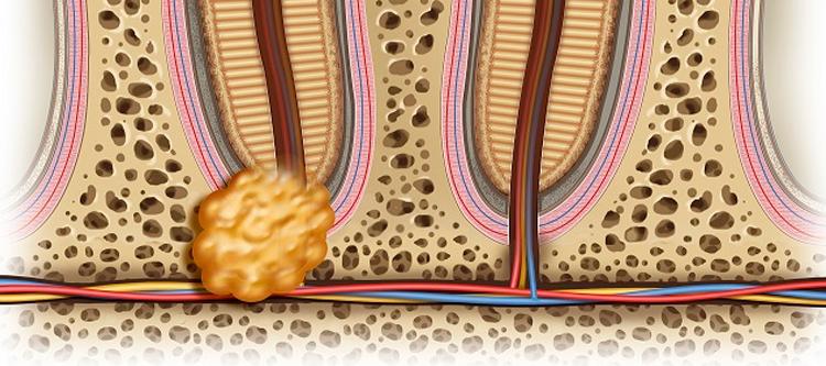 терапевтические методы лечения гранулемы зуба