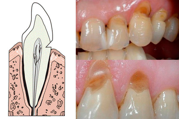 Как восстановить зубной эмаль в домашних условиях 221
