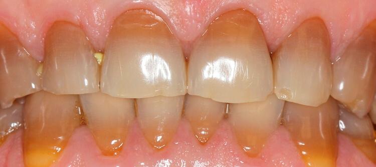 как выглядят тетрациклиновые зубы