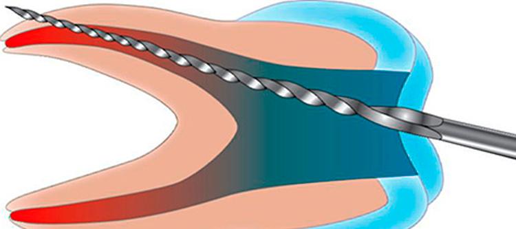 зуб болит после удаления нерва и установки гуттаперчевых штифтов