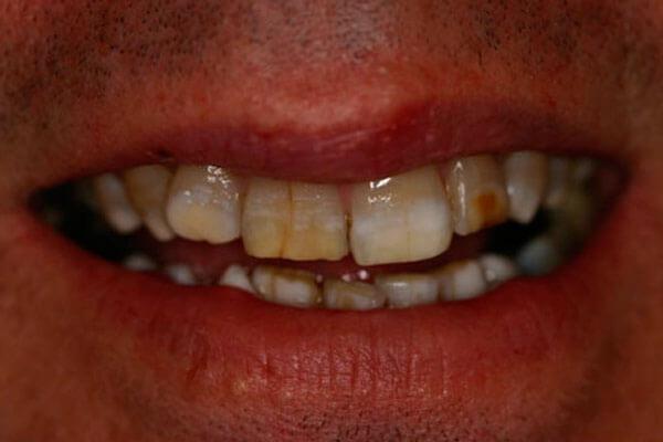 тетрациклиновые зубы исследования ученых