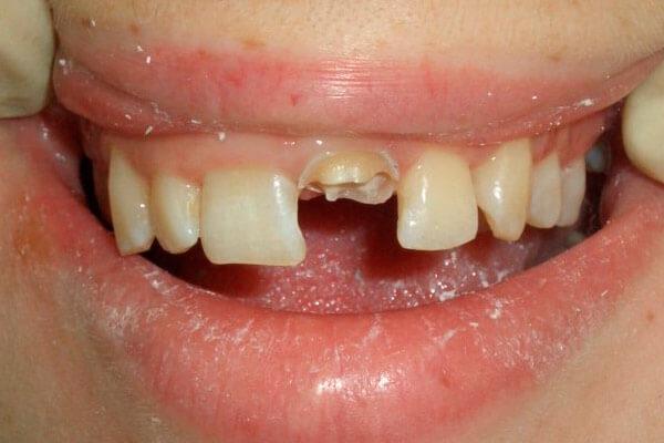мертвый зуб без нерва реагирует на горячую пищу