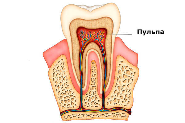 запломбированный зуб реагирует на горячее