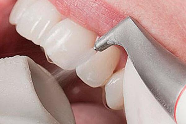 Аїр флоу чистка зубів що це таке