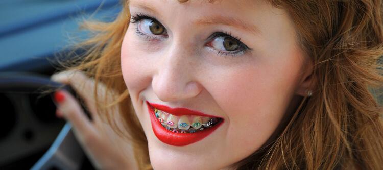 брекеты виктори на зубах
