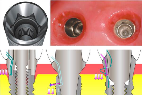 различие формы крепления абатмента osstem от implantium