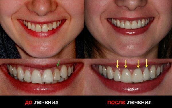результат реставрации передних зубов
