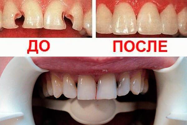фото до и после проведения лечения