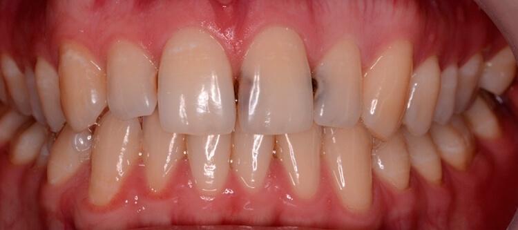 как убрать кариес между передними зубами
