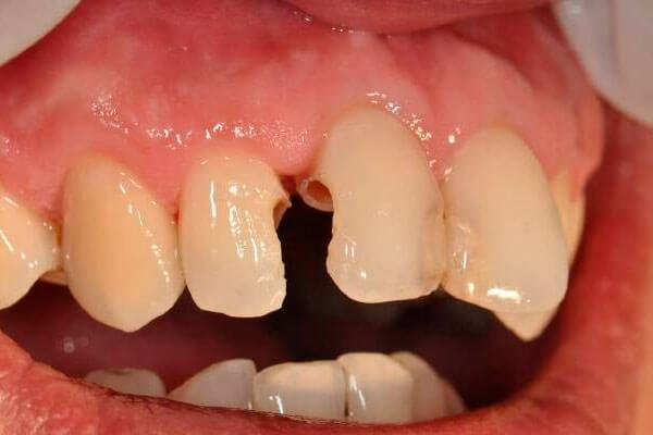 как лечить кариес между передними зубами