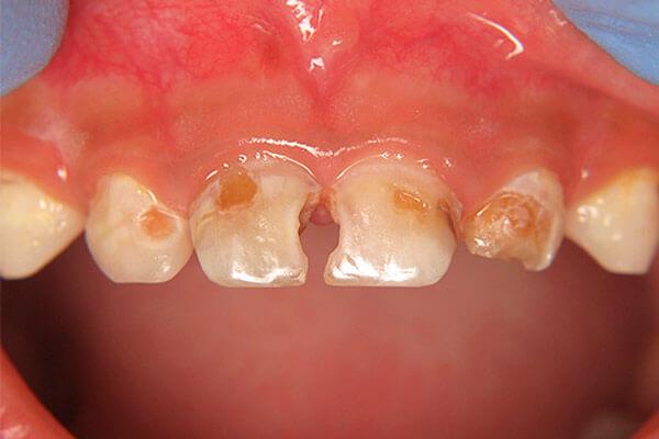 кариес между передними зубами у ребенка