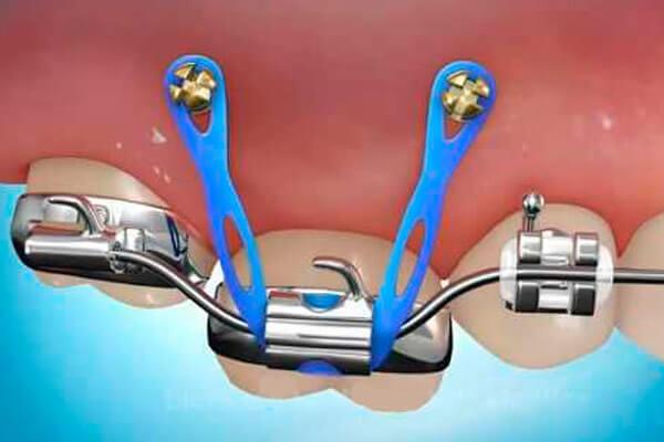вытягивание зуба на миниимплантах